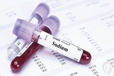 آزمایش سدیم (Na) - Sodium